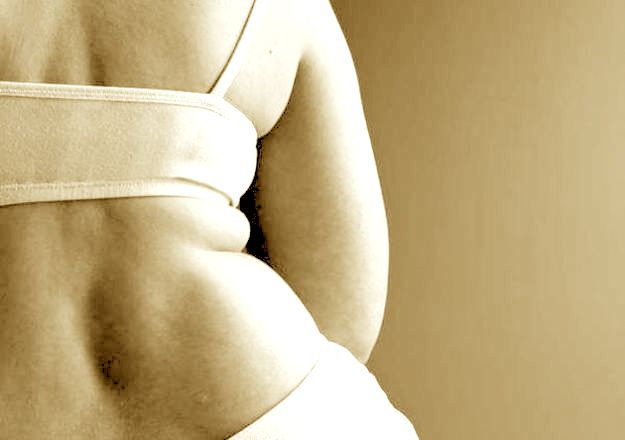 bypass gastrico costi come funziona
