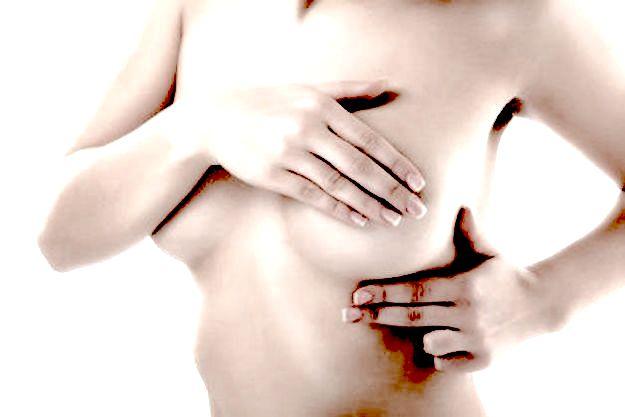 Displasia mammaria: i sintomi e le cure