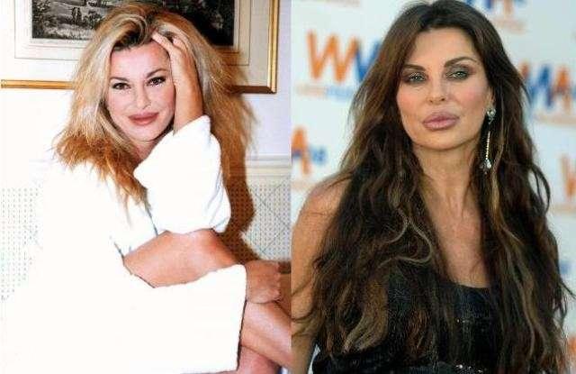 Le labbra rifatte delle vip: prima e dopo il ritocchino [FOTO]