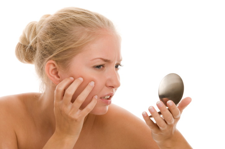 Cicatrici da acne: i rimedi per nasconderle