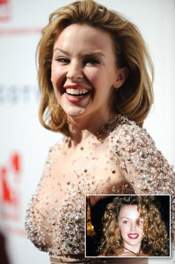 Kylie Minogue prima e dopo