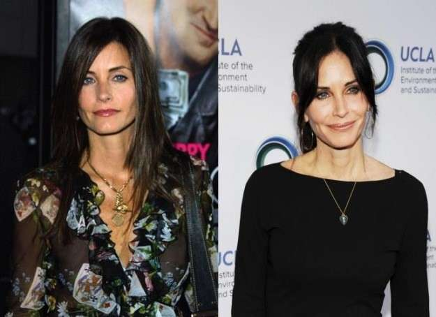 Botox vip: le star rifatte prima e dopo [FOTO]