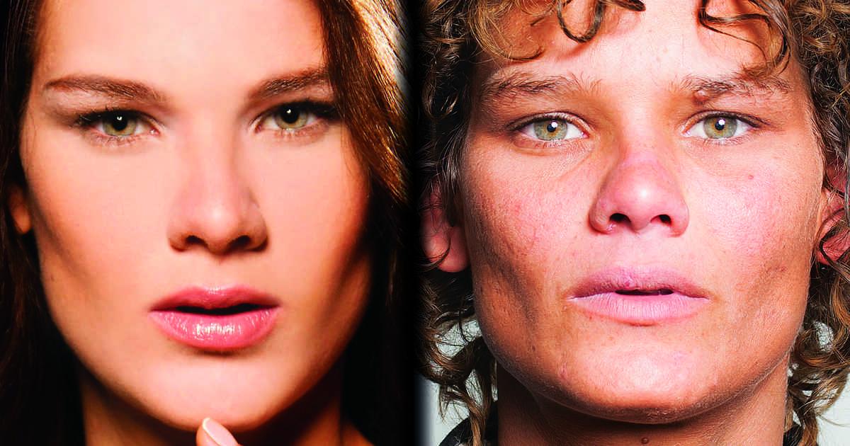 Loemy, la modella che voleva essere come Gisele Bundchen distrutta dal crack