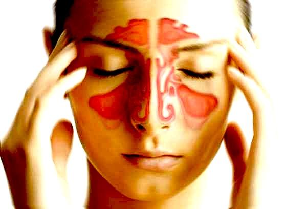 Sinusite: sintomi, rimedi e cura