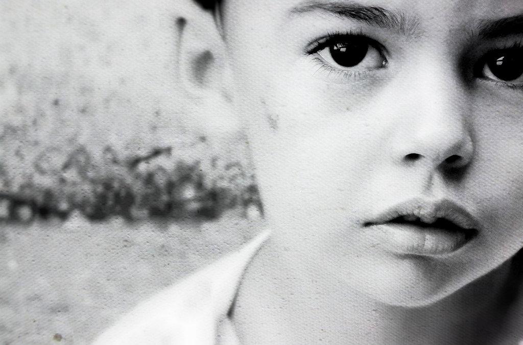 Psicosi infantile: sintomi, cause e cure