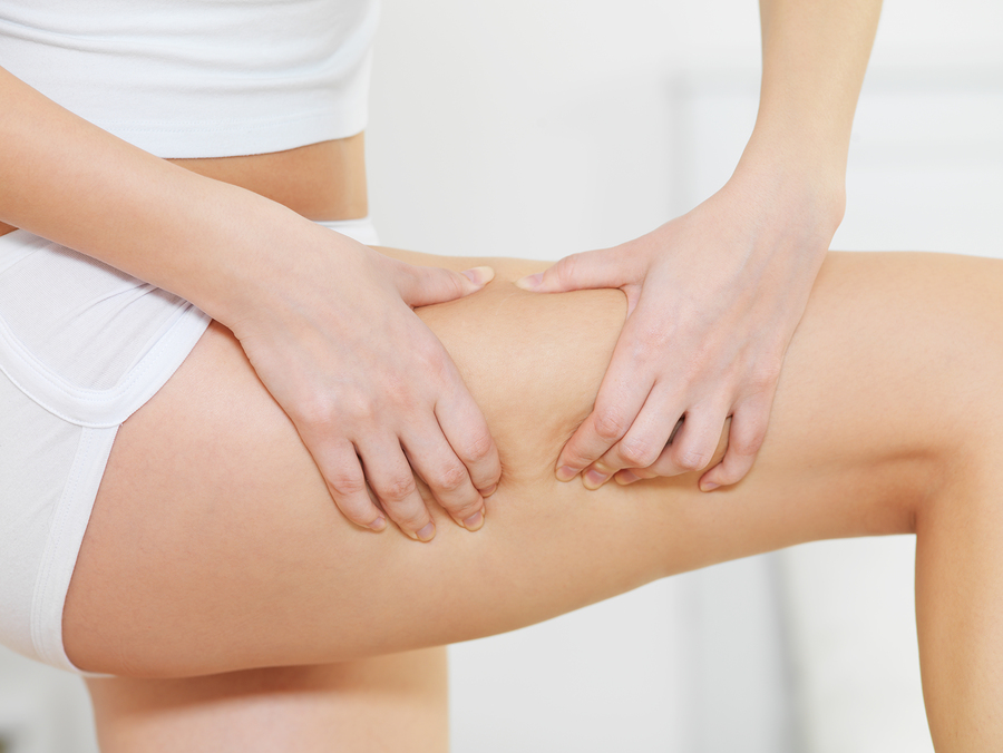 Female squeezes cellulite skin on her legs