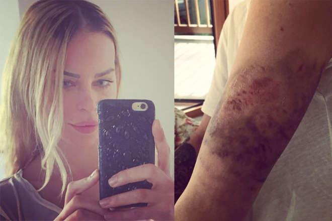 Nina Moric dopo l'incidente domestico mostra gli ematomi