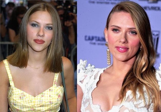 Scarlett Johansson prima e dopo