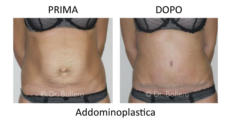 dr bollero addominoplastica pourfemme