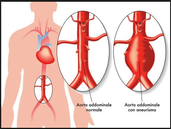 Aneurisma: sintomi, diagnosi e cure