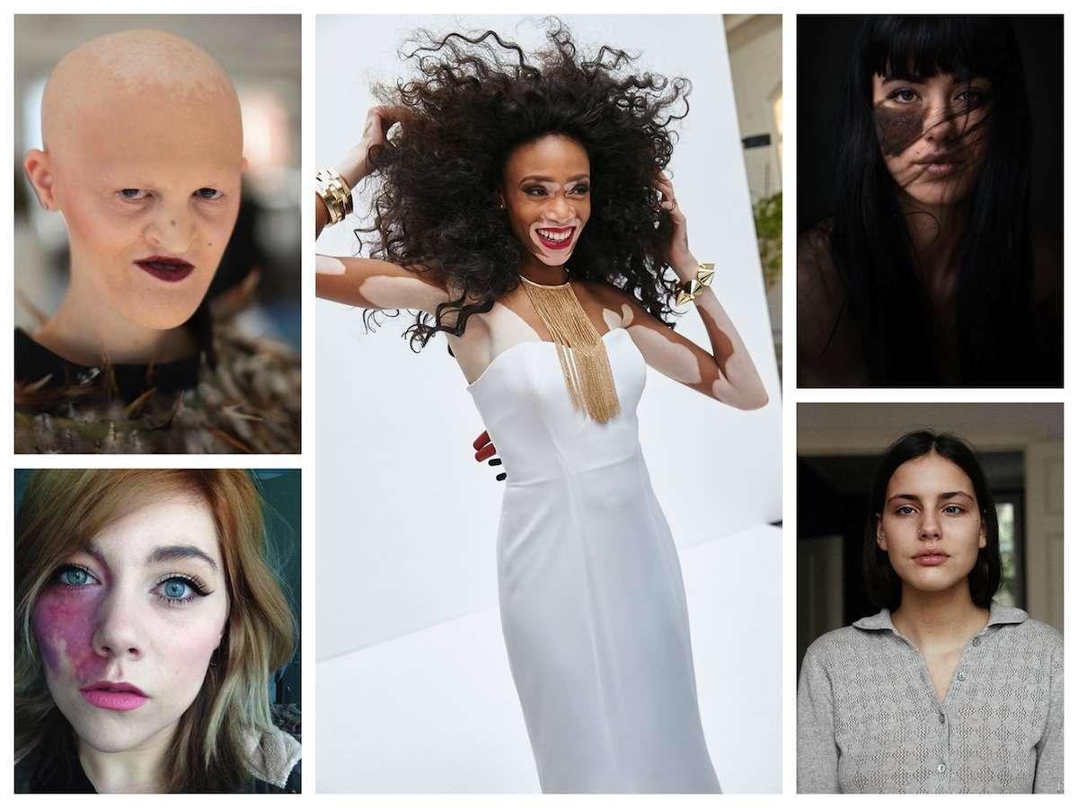 Bellezza non convenzionale: quando i difetti diventano un simbolo [FOTO]