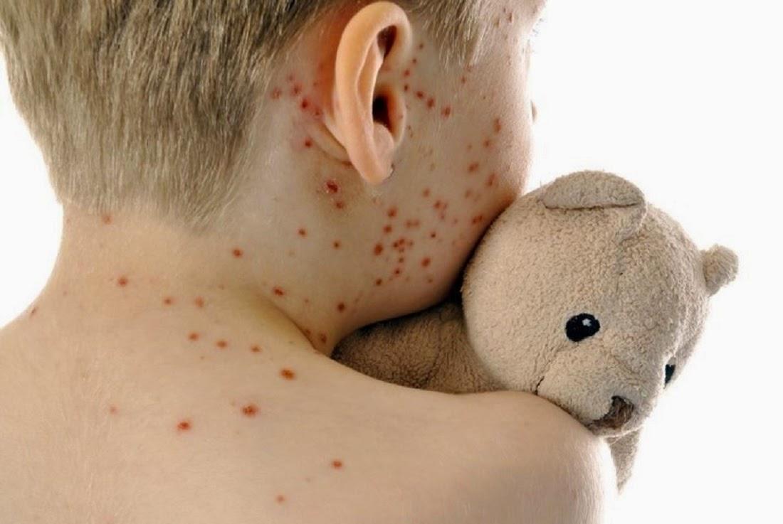 vaccinazioni9