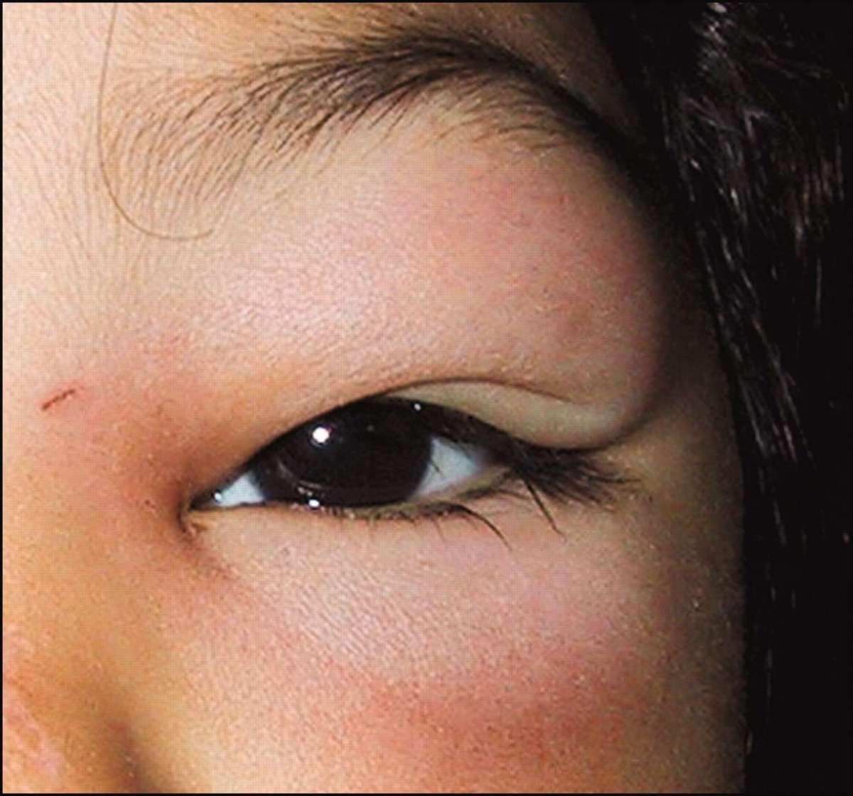 Cellulite orbitaria nei bambini: sintomi, cause e terapia [FOTO]