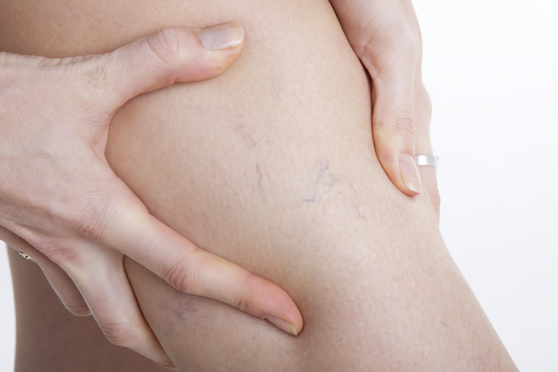 Vene varicose: rimedi, prevenzione e cause