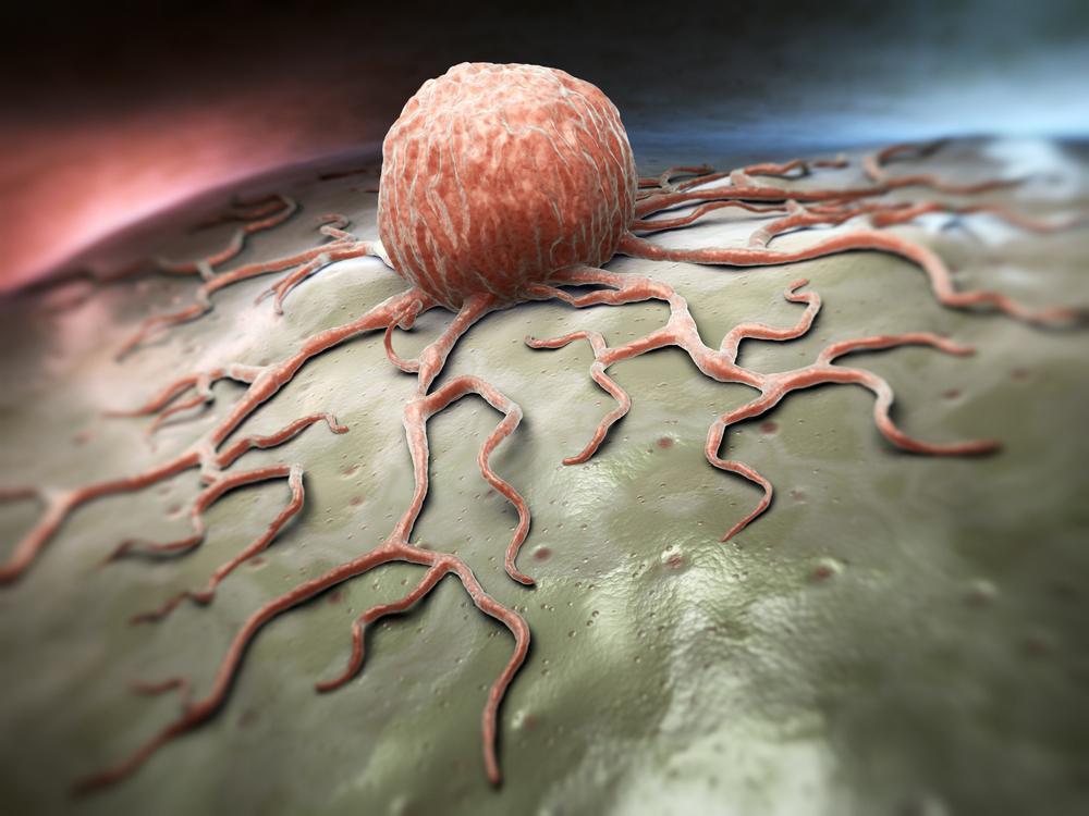 Cancro: i luoghi comuni da sfatare
