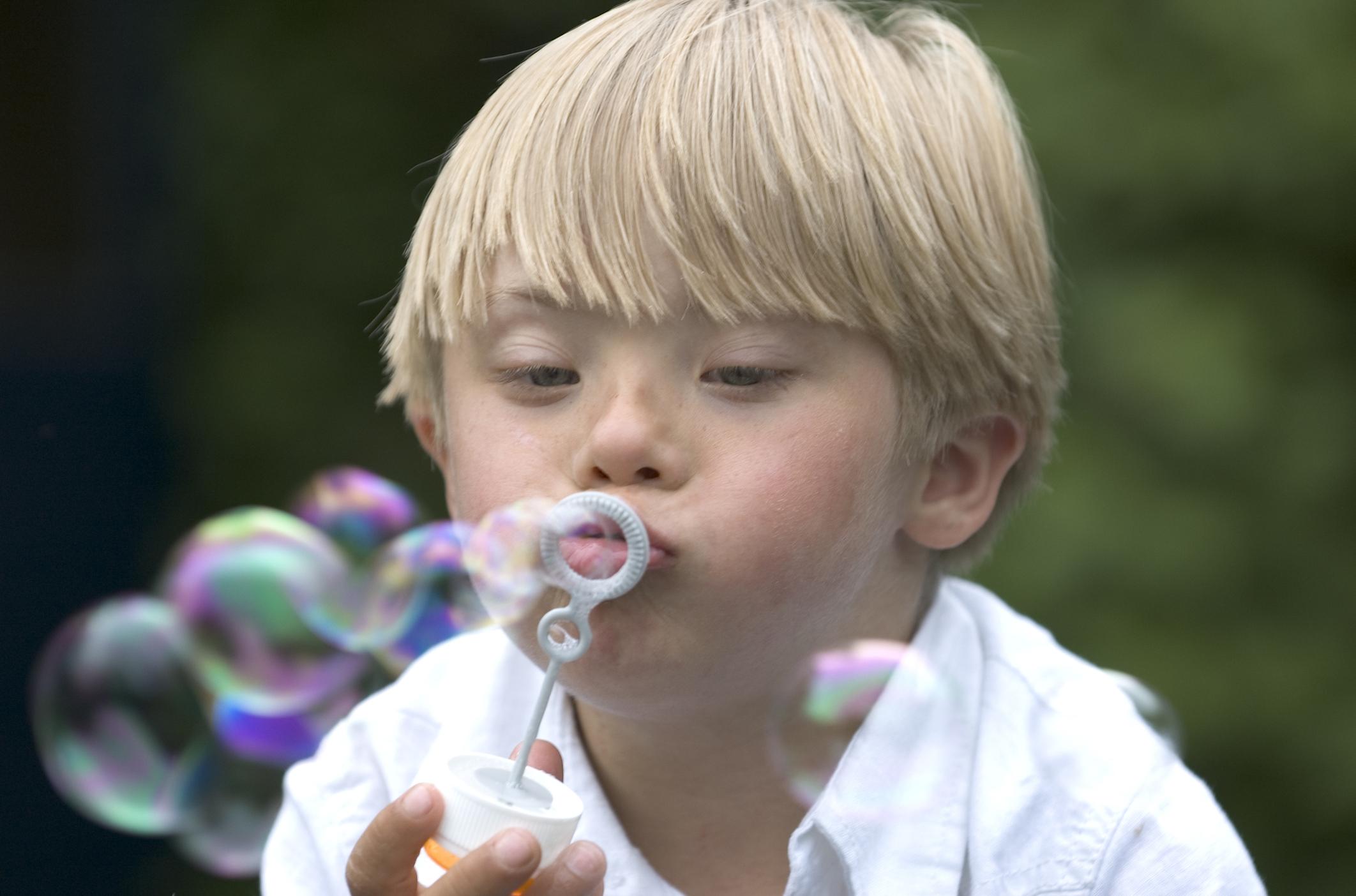 Sindrome di Down: le cause e i sintomi nei neonati