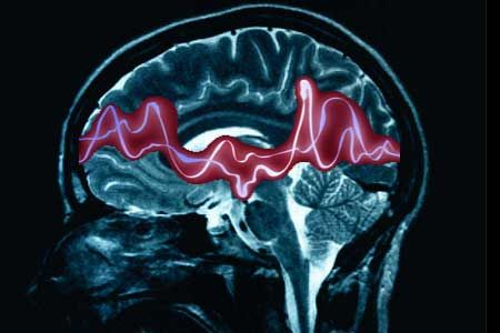 Epilessia: cos'è, come si cura, perchè colpisce