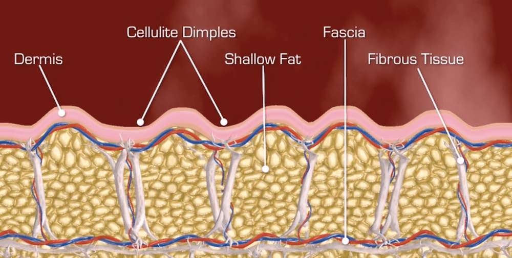 Dove si trova la cellulite