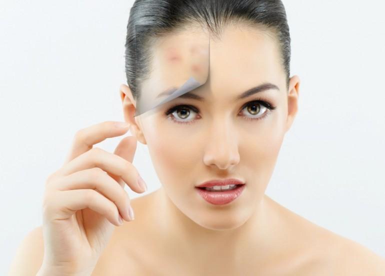 Prodotti bio pelle acneica