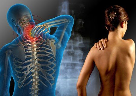 Fibromialgia: cause, sintomi e cure