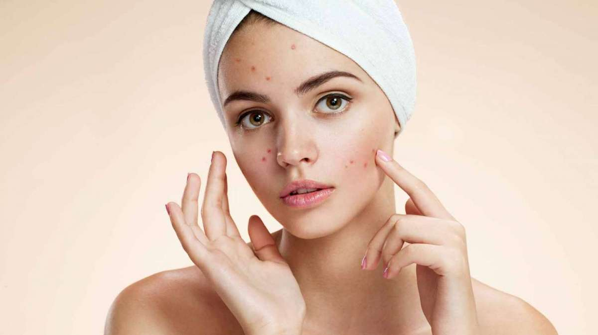 Prodotti bio per l'acne: i migliori da provare per una pelle perfetta [FOTO]