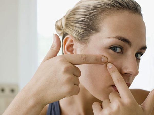 pop pimples lgn