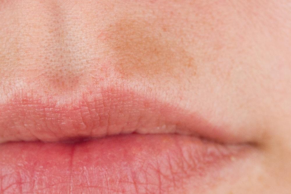 Crema viso anti macchie scure