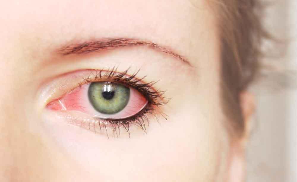 Congiuntivite allergica: quanto dura, terapia e rimedi naturali