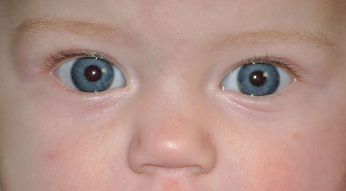 Dermatite atopica nei bambini: cura e rimedi naturali
