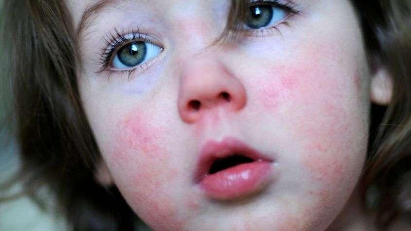 Scarlattina nei bambini: sintomi, incubazione, terapia e quanto dura