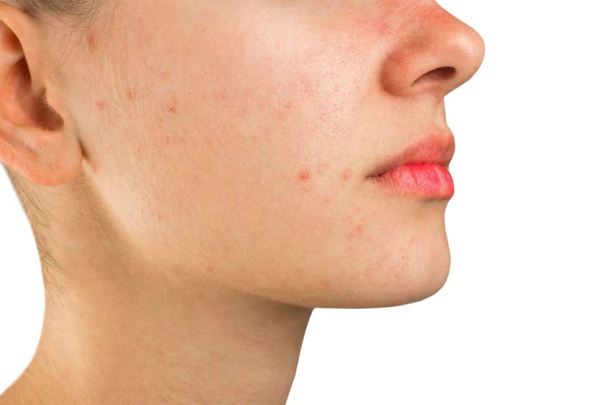 Acne rosacea: cause, cure, rimedi naturali e alimentazione