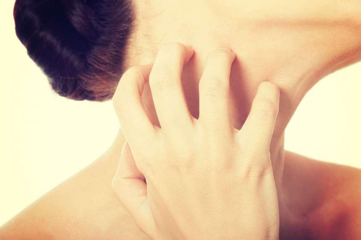 Dermatite da stress: come si manifesta, rimedi e cure