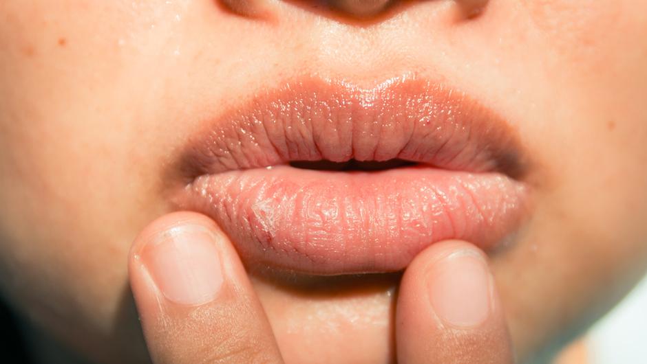 proteggere le labbra estate