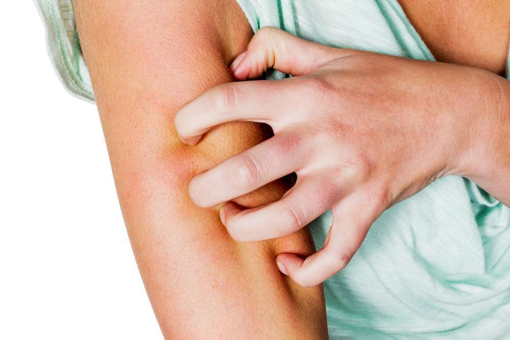 Puntura di pulce: effetti, rimedi e terapia