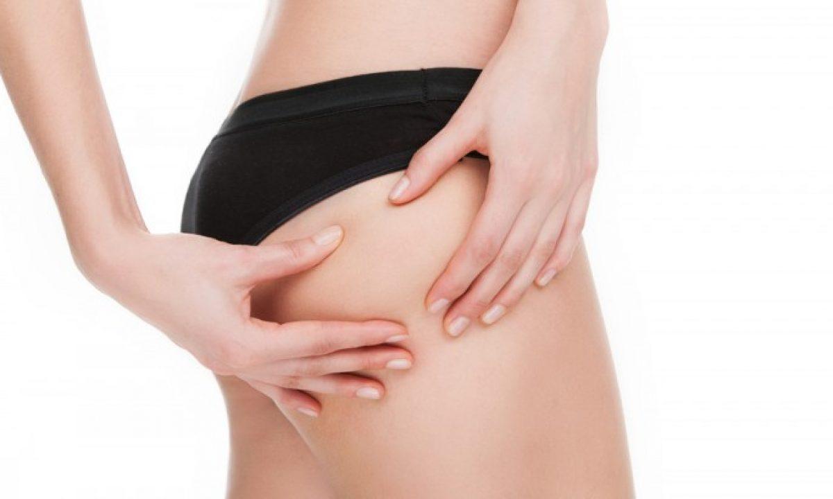15 Rimedi Naturali Contro La Cellulite Pourfemme