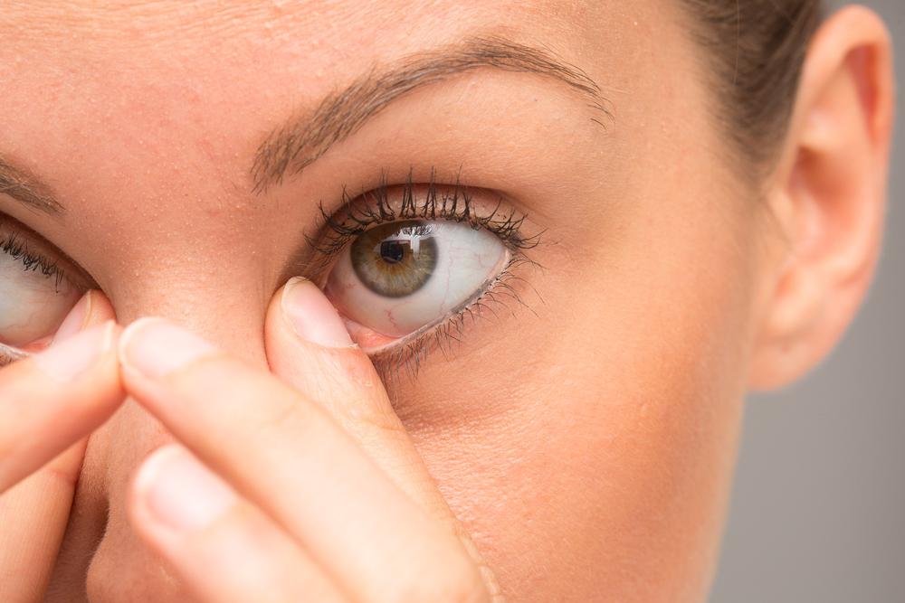 infezioni occhi