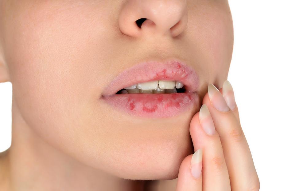 labbra rovinate e secche