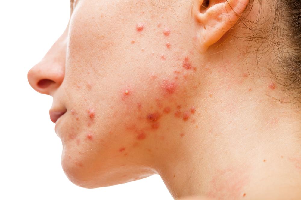 Affetta da una grave acne, guarisce completamente grazie all'olio di cannabis