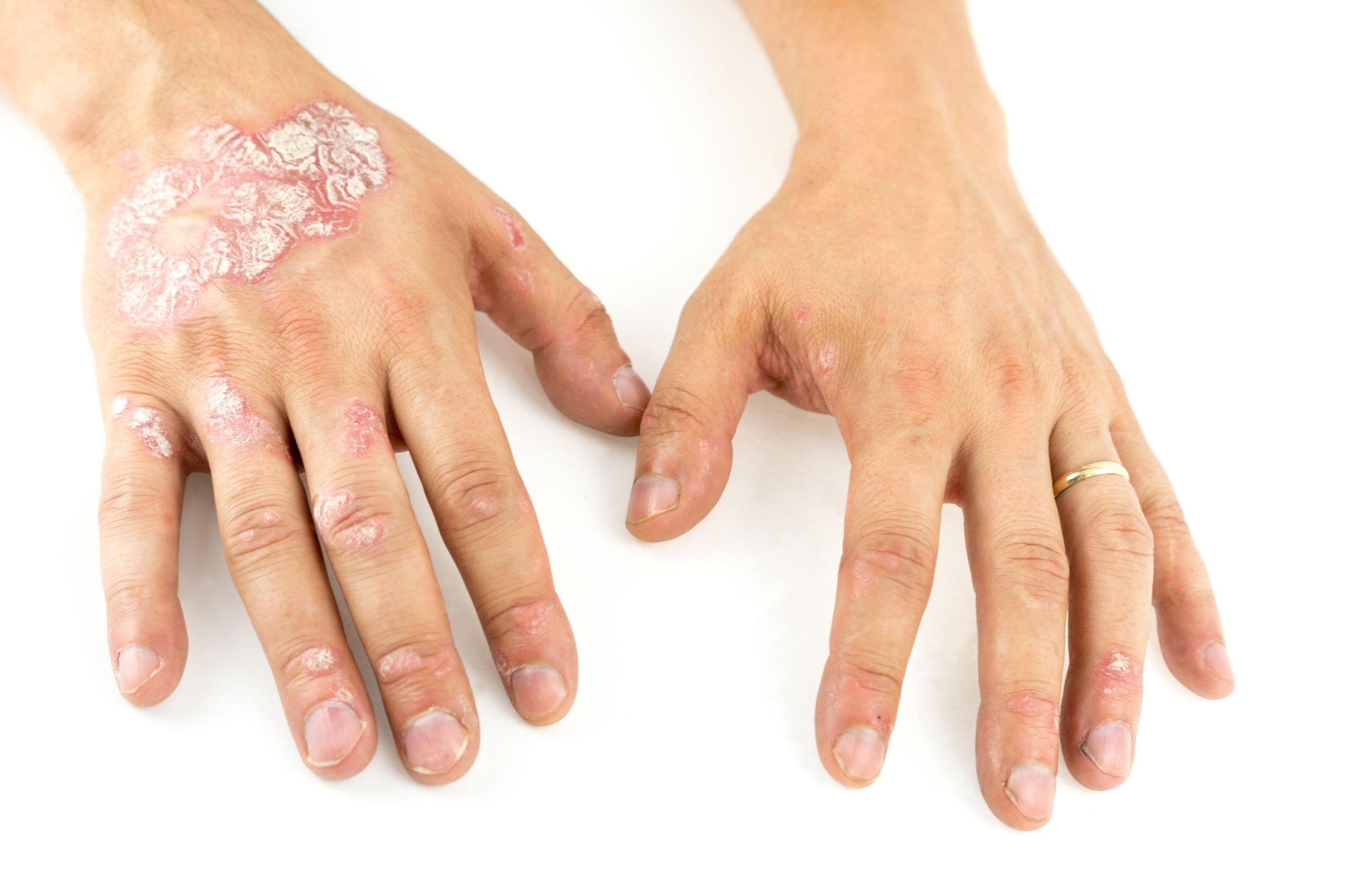 Psoriasi alle mani: i rimedi e le cure