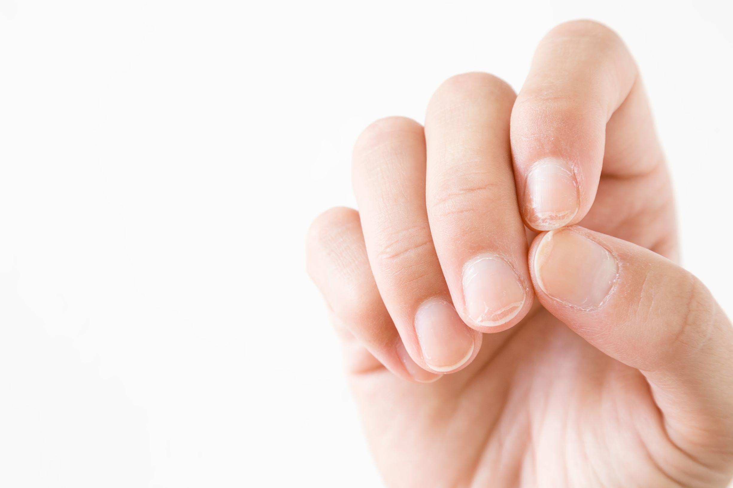 Psoriasi alle unghie: immagini, cure e rimedi