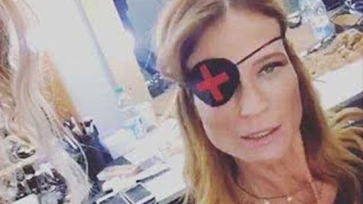 Jane Alexander con un occhio bendato: la verità sul dettaglio