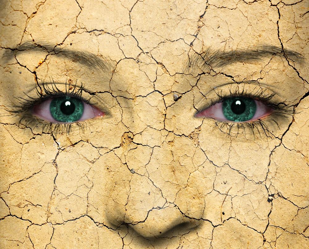 Pelle secca in inverno: le cause, e qualche rimedio
