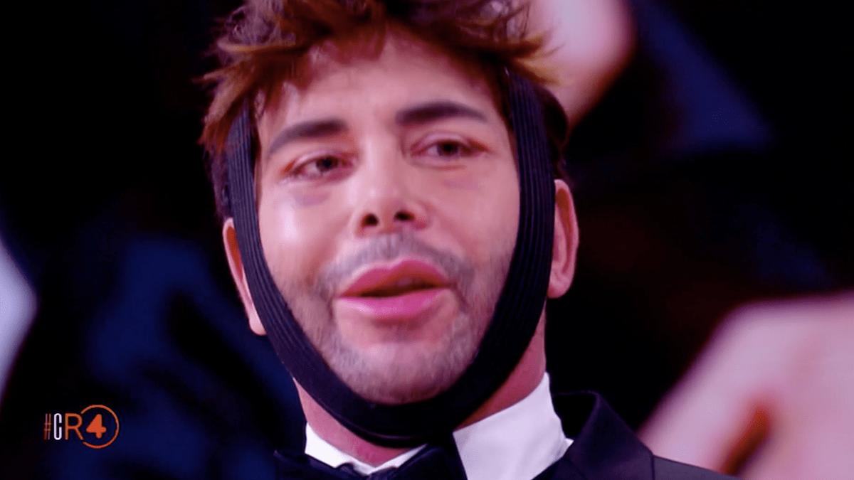 Giacomo Urtis: irriconoscibile dopo la chirurgia estetica