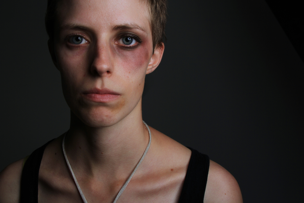 Giornata mondiale della violenza sulle donne
