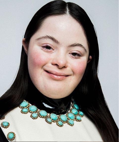 Ellie Goldstein è il nuovo volto della campagna Gucci
