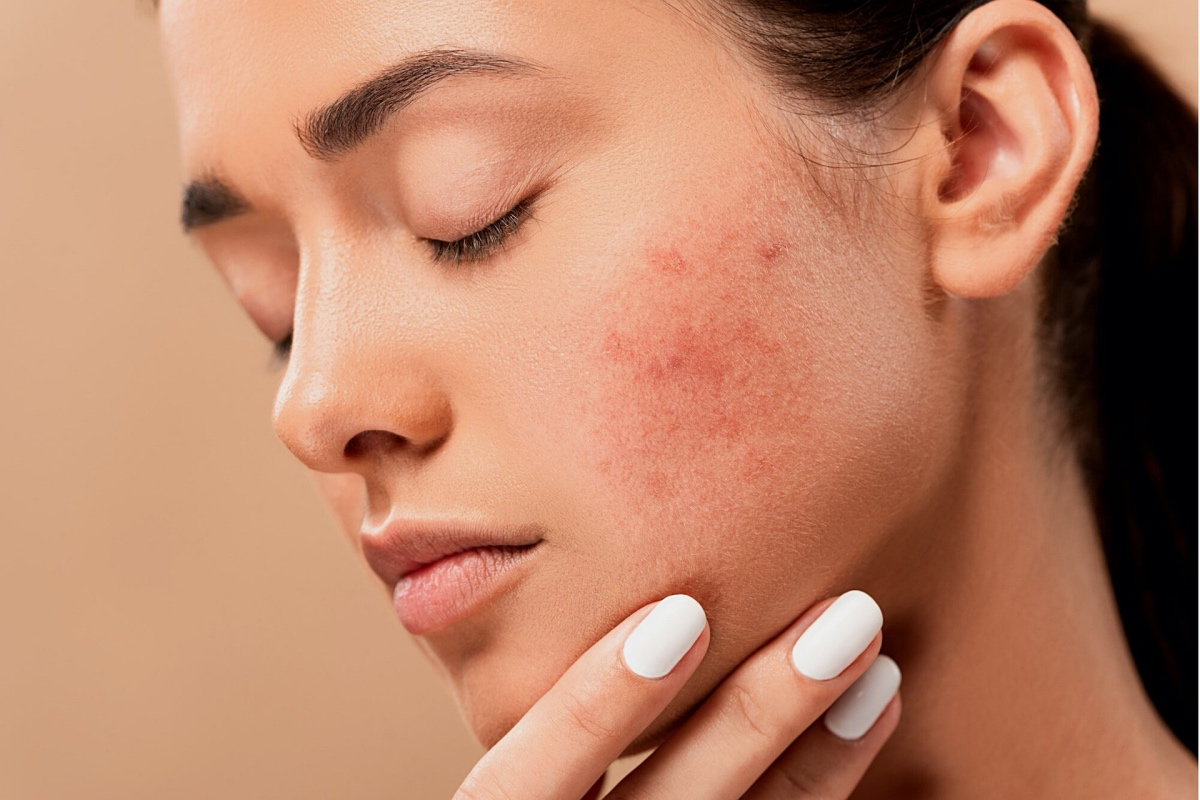 Acne Skin Purging