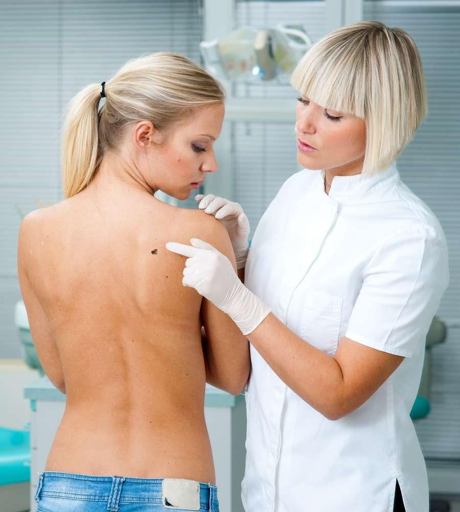 La prevenzione del melanoma