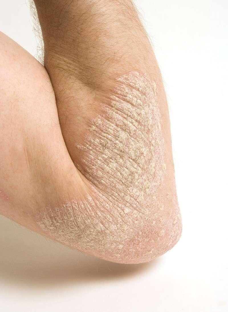 Eczema del braccio