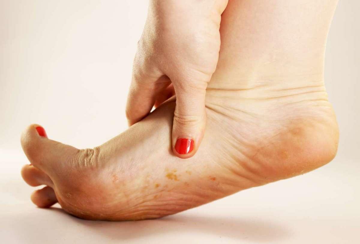 Micosi sulla pelle del piede