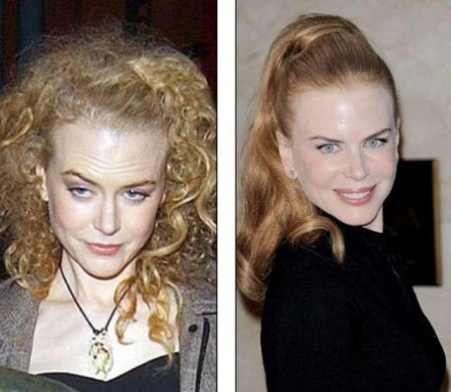 L'attrice australiana prima e dopo il botox